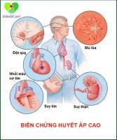 Bệnh tăng huyết áp với nhiều biến chứng nguy hiểm