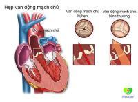 Cách điều trị và phòng bệnh hẹp van động mạch chủ